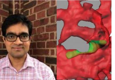 Saúde: Pesquisadores descobrem proteína que impede que câncer se espalhe