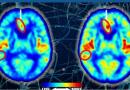 Saúde: Terapia com oxigênio pode frear ou até reverter pacientes com Alzheimer, afirma novo estudo